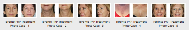 PRP Before and After Photos